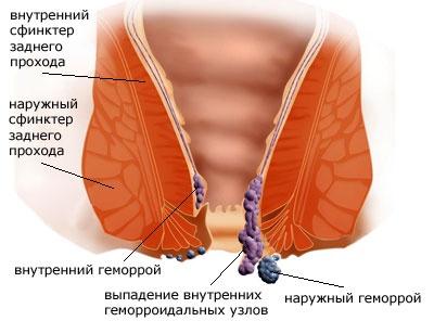 Лечение геморроя в Иркутске