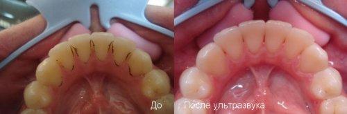 lechenie_zubov_uz_03