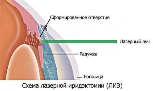 lechenie_glaukomy_02
