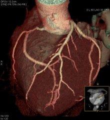 kt-coronarographiya-1