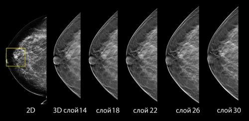 3d-mammograma-2