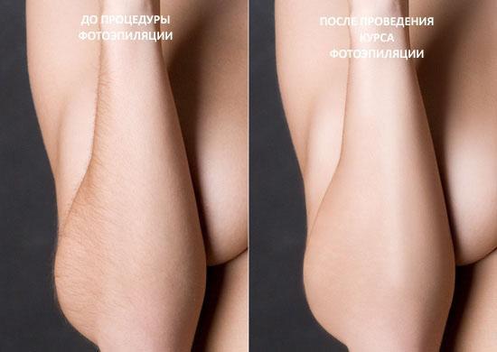Фотоэпиляция сколько нужно процедур для полного удаления волос Лечение волос Улица 2-я Марата Чебоксары