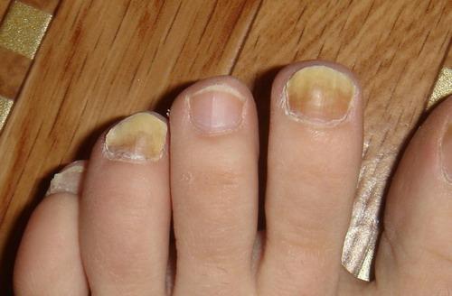 Как народными средствами избавиться от грибка ногтей на ногах