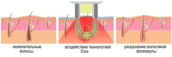 Что такое ЭЛОС эпиляция