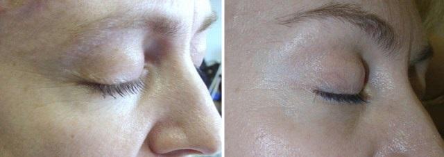 Фото №3 до и после фотоомоложения лица
