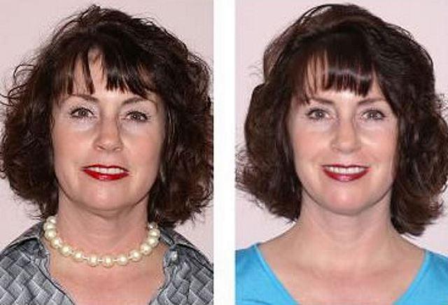 Фото №4 до и после фотоомоложения лица