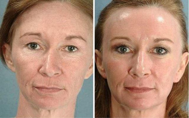 Фото №1 до и после фотоомоложения лица