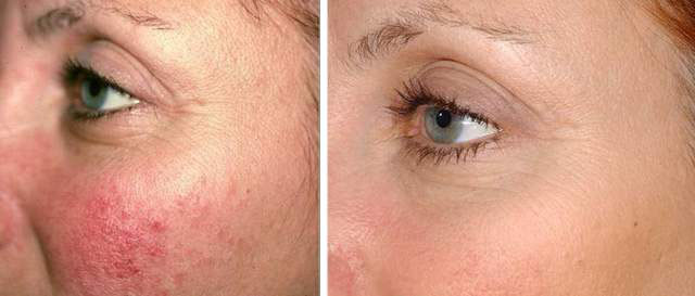 Фото №2 до и после фотоомоложения лица