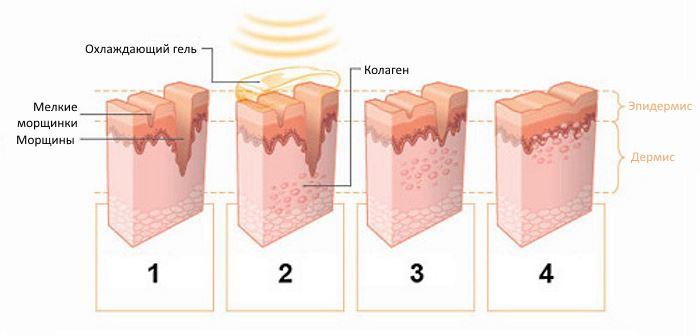 Аппаратное воздействие на кожу при фотоомоложении лица