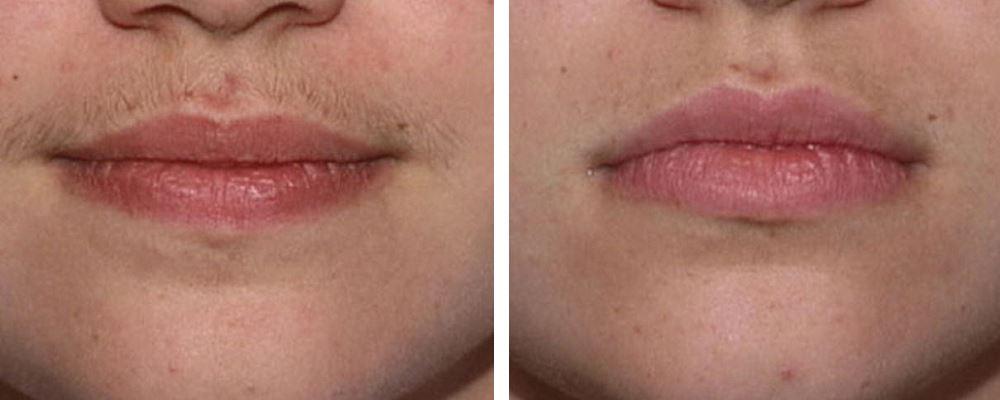 Фото №2 до и после лазерной эпиляции над верхней губой