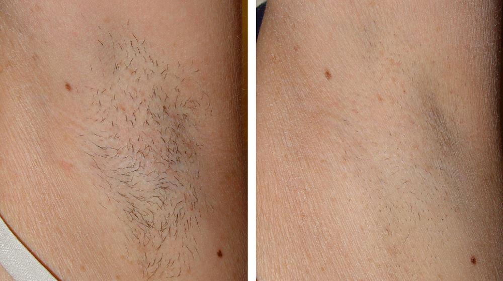 Фото №1 до и после лазерной эпиляции волос в подмышках