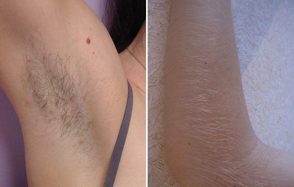 Эффективность лазерной эпиляции в зависимости от контраста цвета кожи и цвета волос