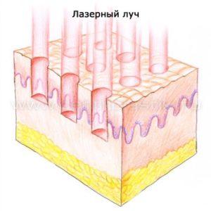 Воздействие лазера при фракционном термолизе