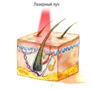 Что такое лазерная эпиляция