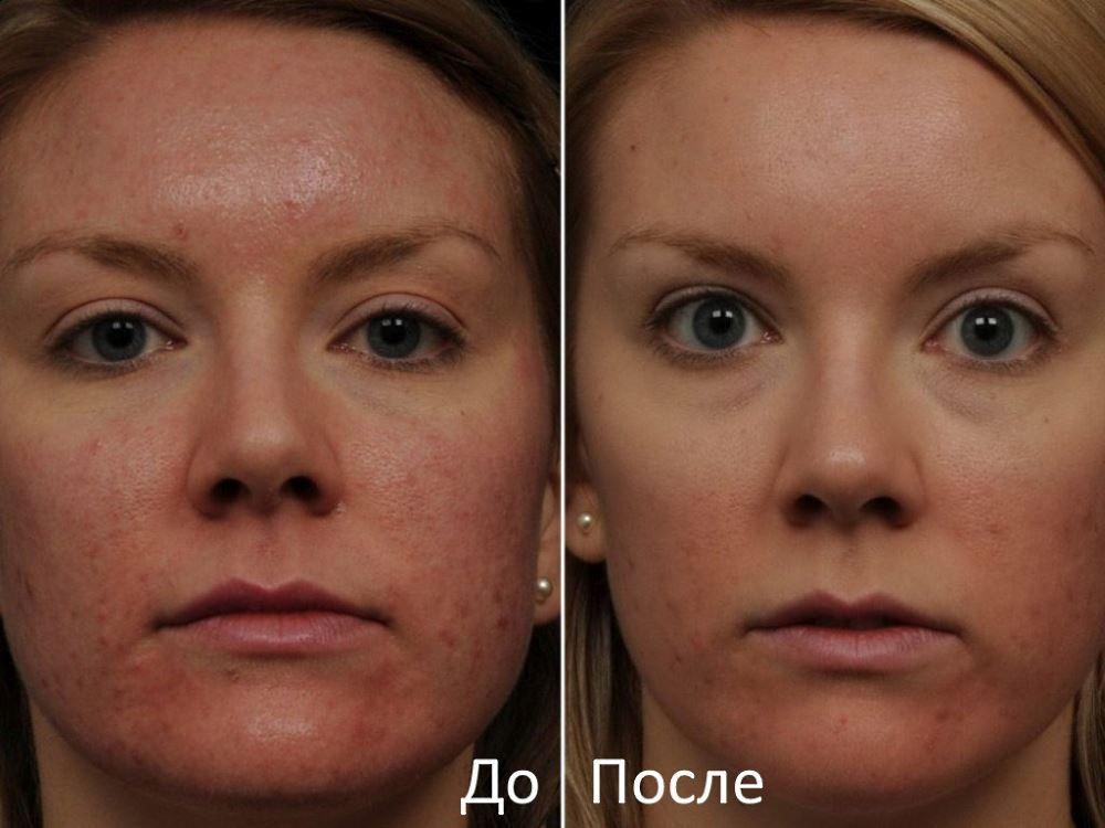 Фото до и после лазерного пилинга лица