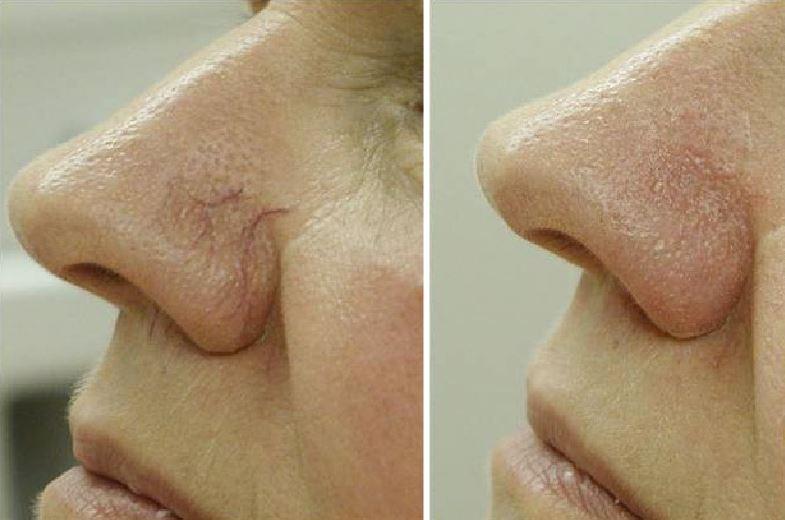 Фото до и после удаления сосудистых звездочке на носу лазером
