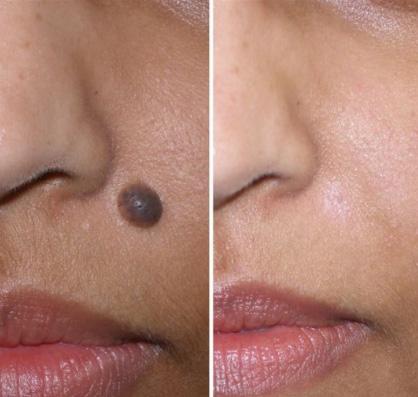 Фото до и после удаления родинки лазером