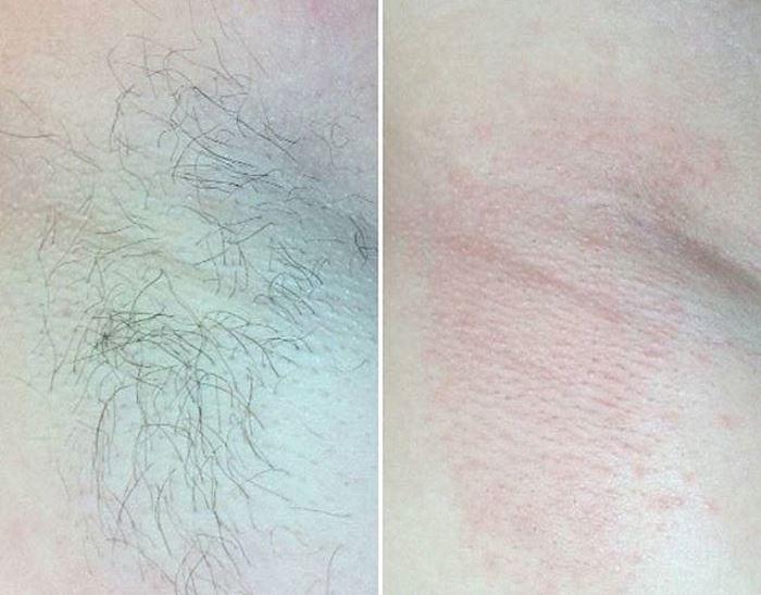 Фото до и после электроэпиляции