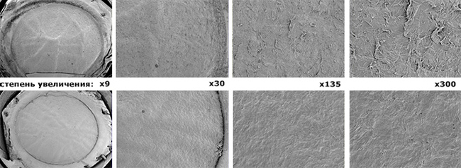 Формирование лоскута при лазерной коррекции зрения