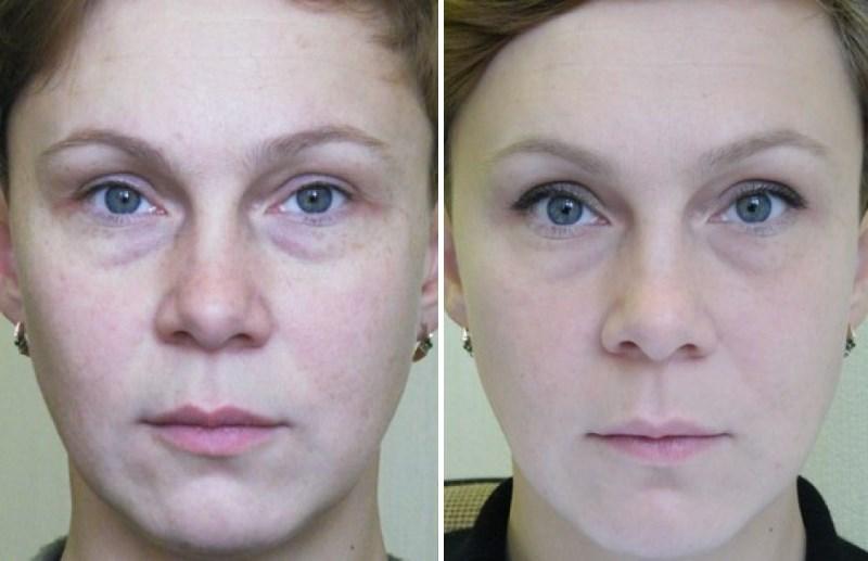 Фото №2 до и после лазерного омоложения