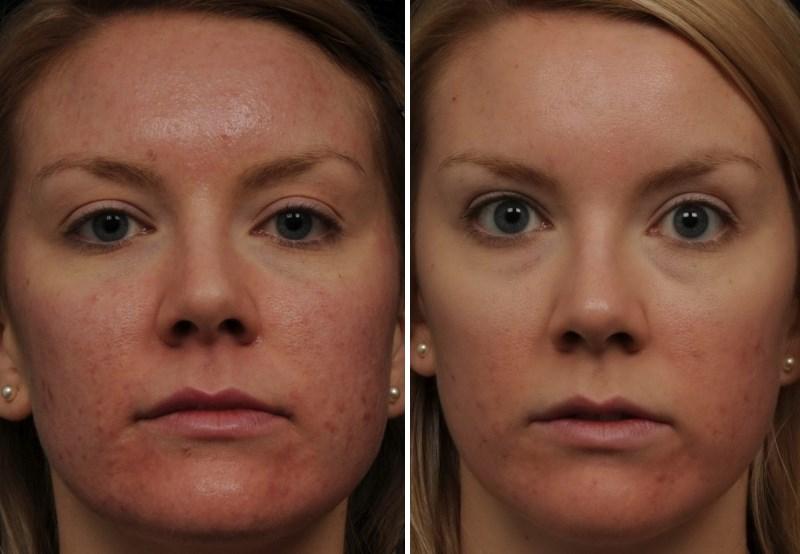 Фото №1 до и после лазерного омоложения