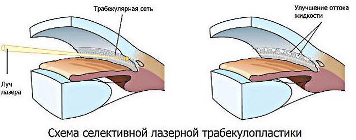 Лазерная селективная трабекулопластика