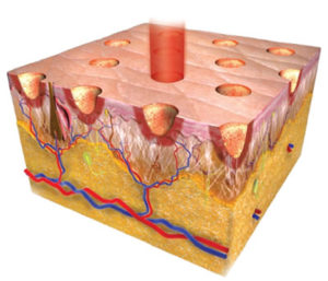 Омоложение кожи фракционным лазером