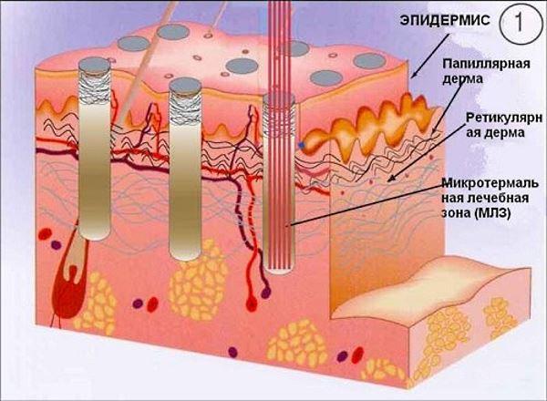 Фракционная методика лечения растяжек