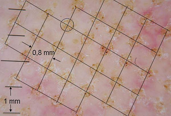 Как выглядит кожа после воздействия фракционного лазера