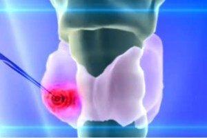 Лечение щитовидной железы при помощи лазера