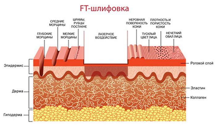 Методика удаления шрамов и рубцов лазером