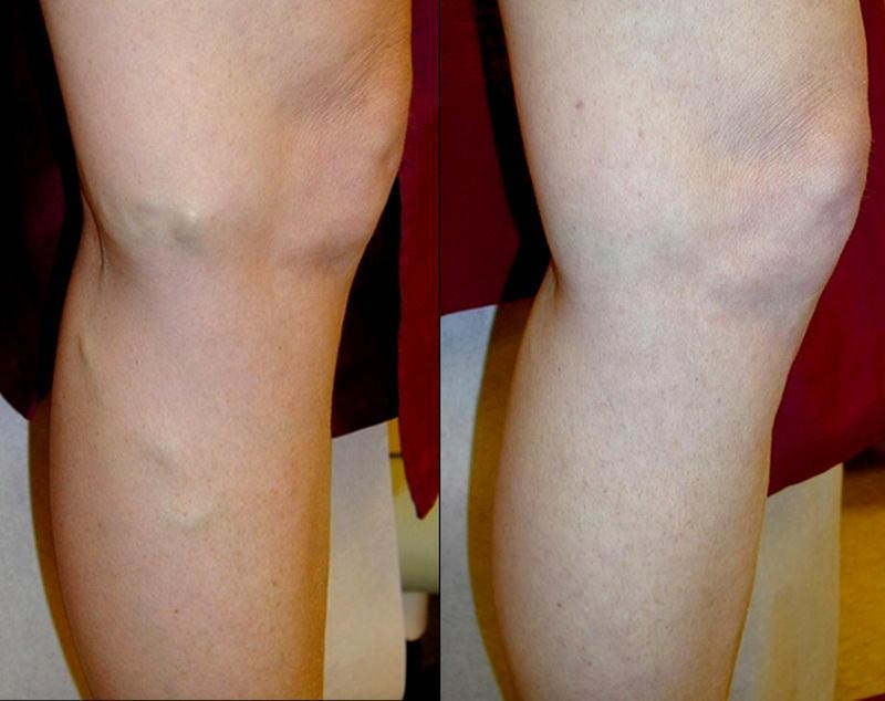 Фото №1 лечение варикоза лазером до и после