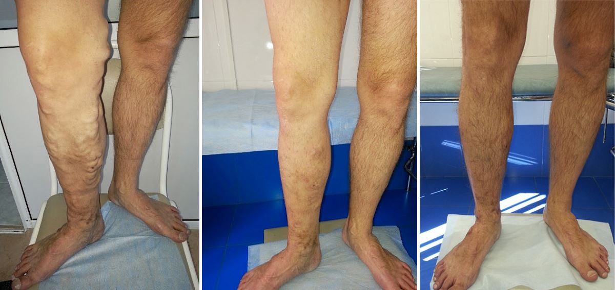 Фото №2 лечение варикоза лазером до и после