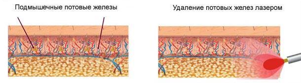 Технология лазерного лечения гипергидроза