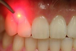 Лечение зубов лазером, области применения