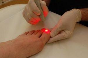 Удаление, лечение вросшего ногтя лазером