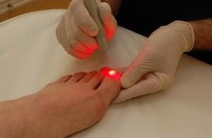 Удаление и лечение вросшего ногтя лазером