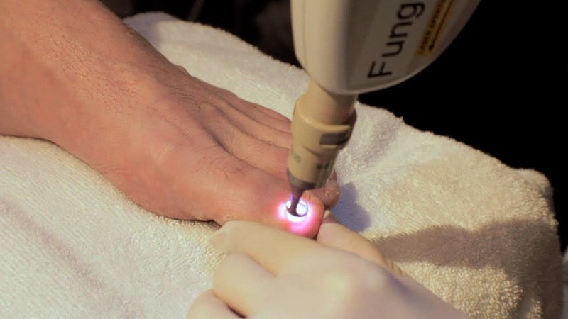 Как удаляют вросший ноготь лазером