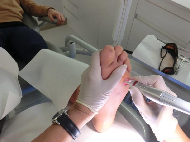 Как удаляют подошвенные бородавки лазером