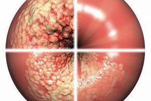 Лечение дисплазии шейки матки лазером