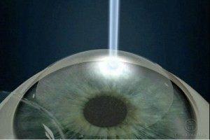 Методика лазерной коррекции зрения ЭПИ-ЛАСИК