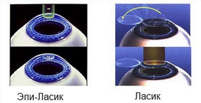 Отличия Эпи-ласик от Ласик коррекции зрения