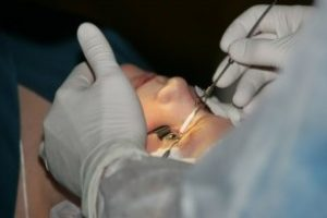 Эксимер лазерная коррекция зрения, ее преимущества
