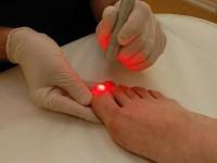 Лазерное лечение грибка ногтей
