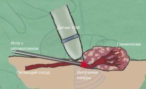 Применение лазера при лечении гемангиомы