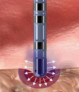 Лазерная абляции небных миндалин