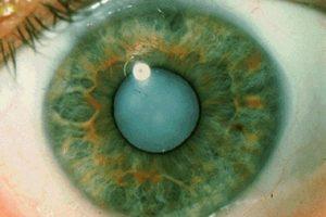 Лечение катаракты лазером