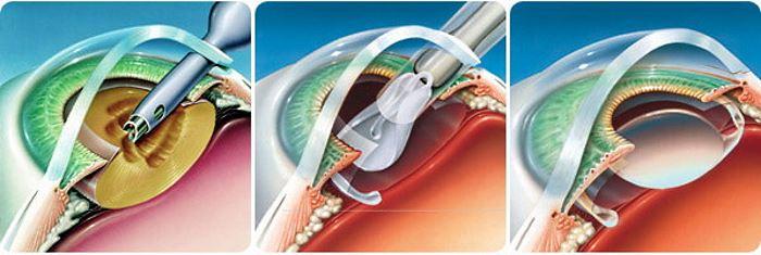 Операция по лечению катаракты лазером
