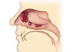Удаление полипов в носу лазером