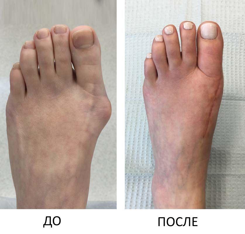 До и после удаления косточки на ноге